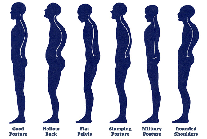 5 Simple Ways To Improve Your Posture
